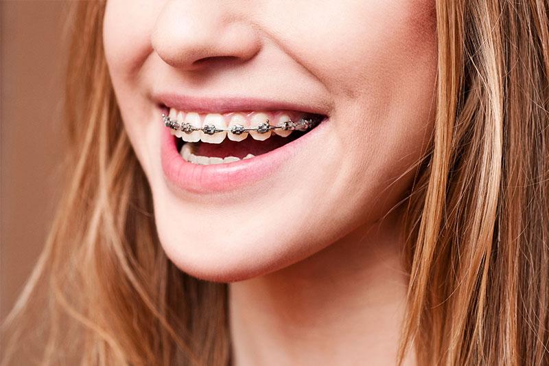 Avondale Orthodontics
