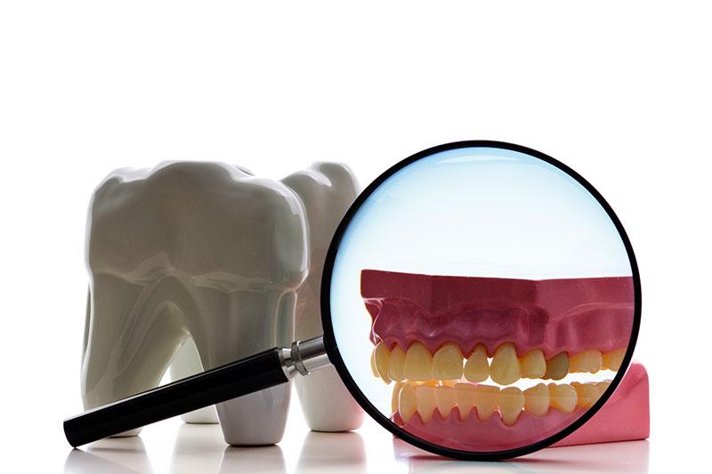 Root Canal - Avondale Family Dental Care, PC, Avondale Dentist