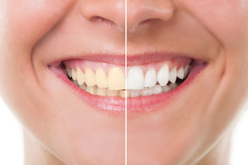 Teeth Whitening - Avondale Family Dental Care, PC, Avondale Dentist